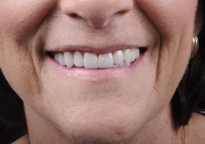 Cambio de Sonrisa Después